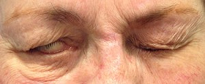 Dr. Bastidas treats many facial paralysis conditions including raising & tightening the lower lid for less eye exposure.