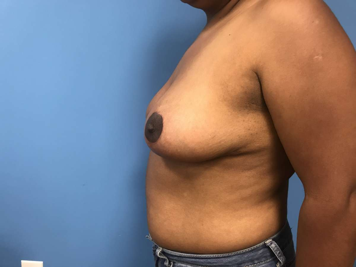 Adolescent breast reduction, problematic to boys & girls, is a safe & effective treatment method for breast hypertrophy.