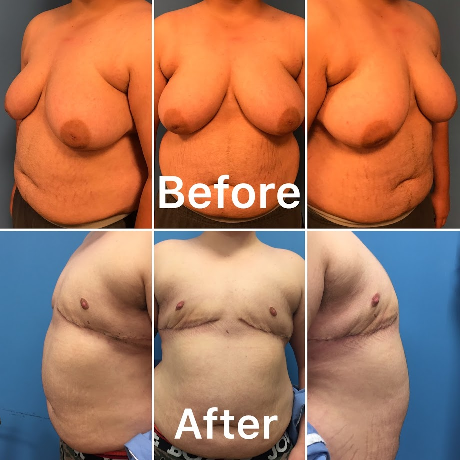 A transgender surgery that we completed in NYC