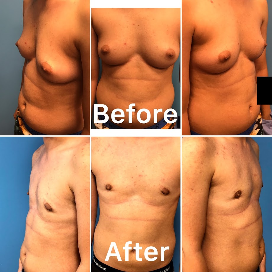 Transgender female to male breast surgery