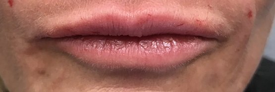 Dr. Bastidas is well known in New York & Long Island for lip augmentation, receiving referrals from satisfied patients.