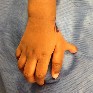 Dr. Bastidas has much experience in surgical reconstruction of extra fingers & toes, resulting in patient satisfaction.