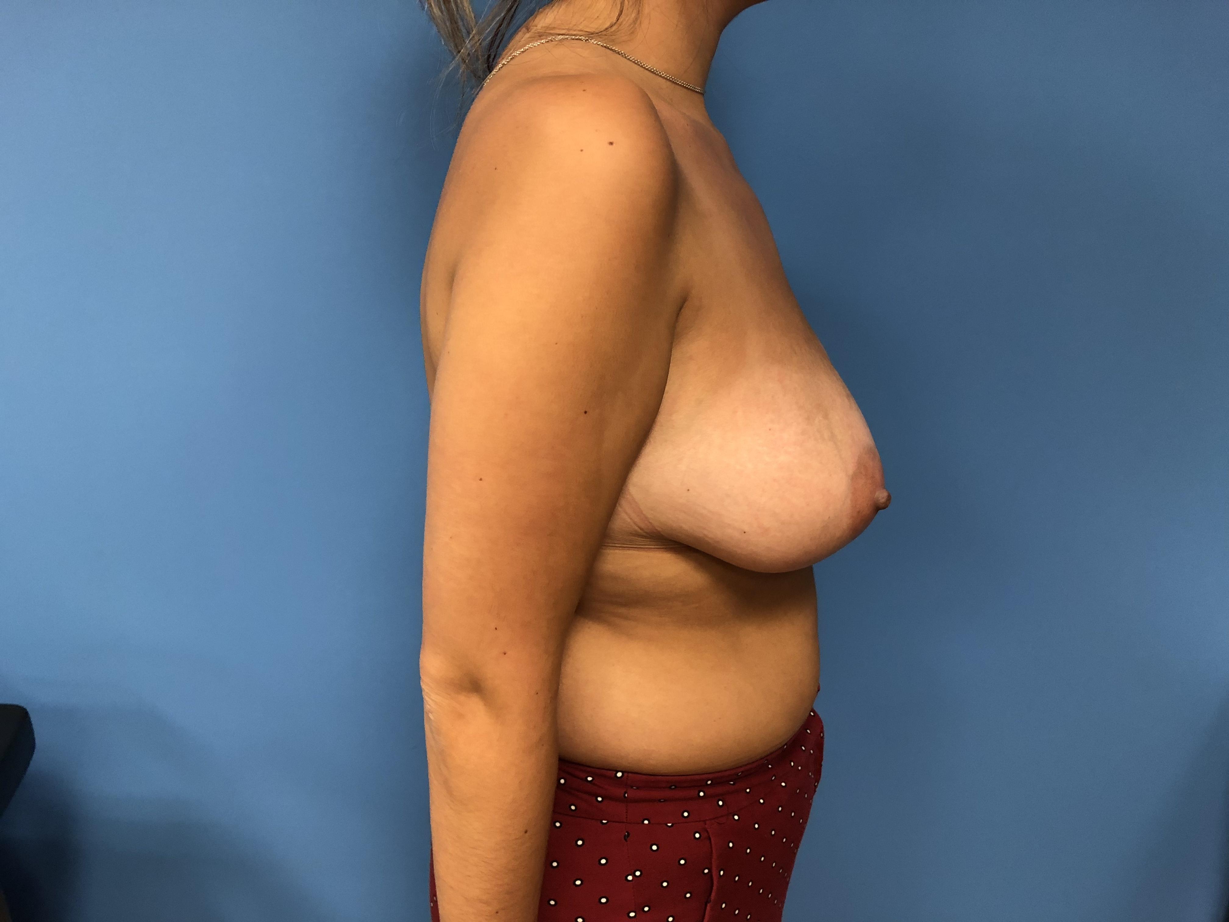 breast-lift-pics-hot-sweedish-girl-fully-nude
