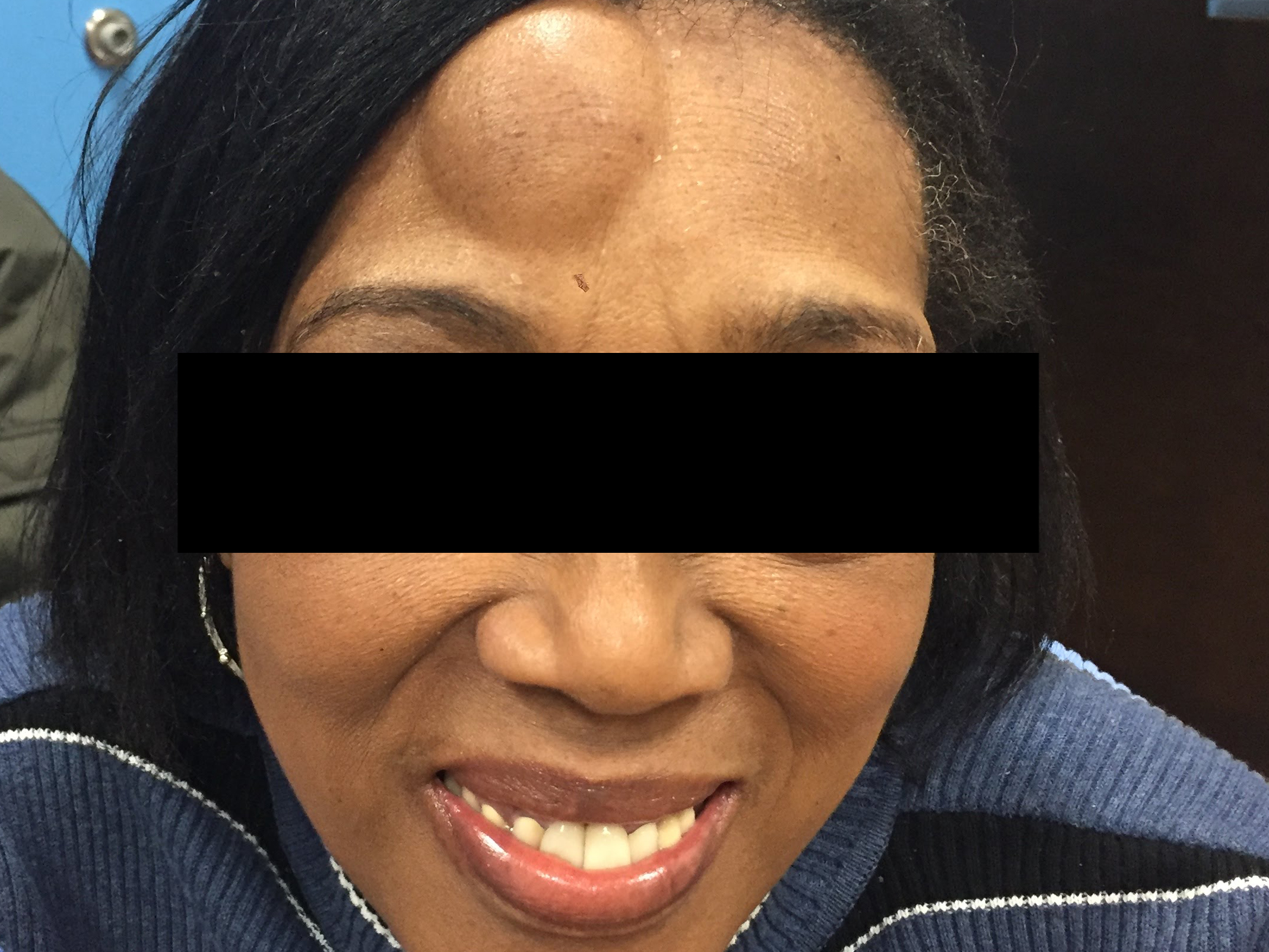 A woman before lipoma surgery near Long Island