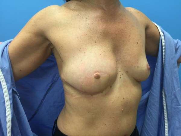 Dr. Nicholas Bastidas has extensive experience in performing the variety of breast reconstructive surgeries available.