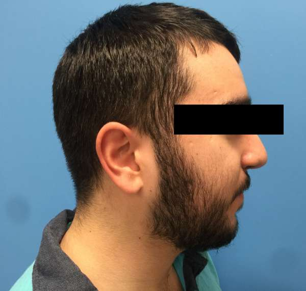 Dr. Nicholas Bastidas performs cleft rhinoplasty on patients to correct deviated septum, the rim & the tip of the nose.