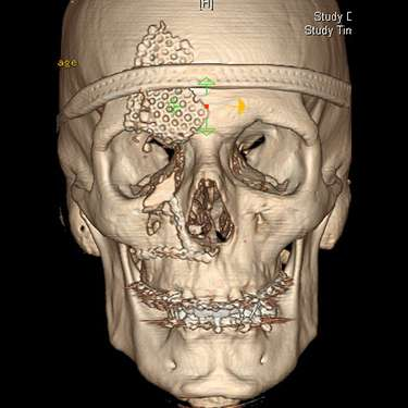 A computer image of a face that needs craniofacial surgery in NYC