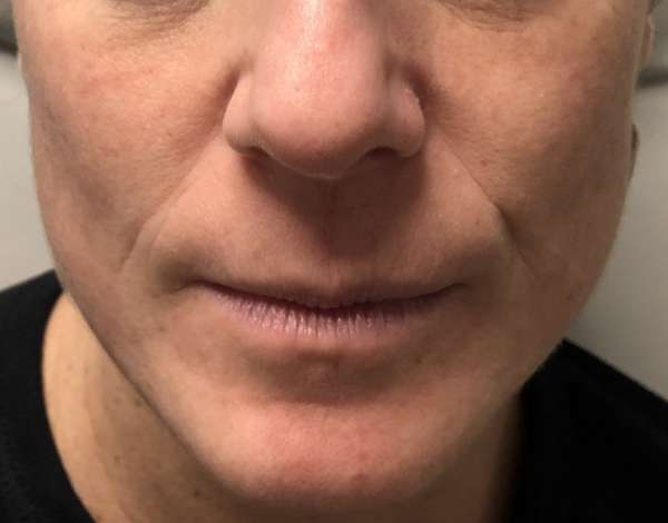 Dr. Nicholas Bastidas has a busy practice using fillers for non-surgical treatments for a range of cosmetic enhancements.