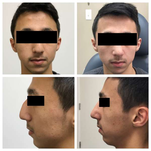 Nose surgery or Rhinoplasty can enhance your self esteem. Contact Dr. Nicholas Bastidas for a consultation on this.