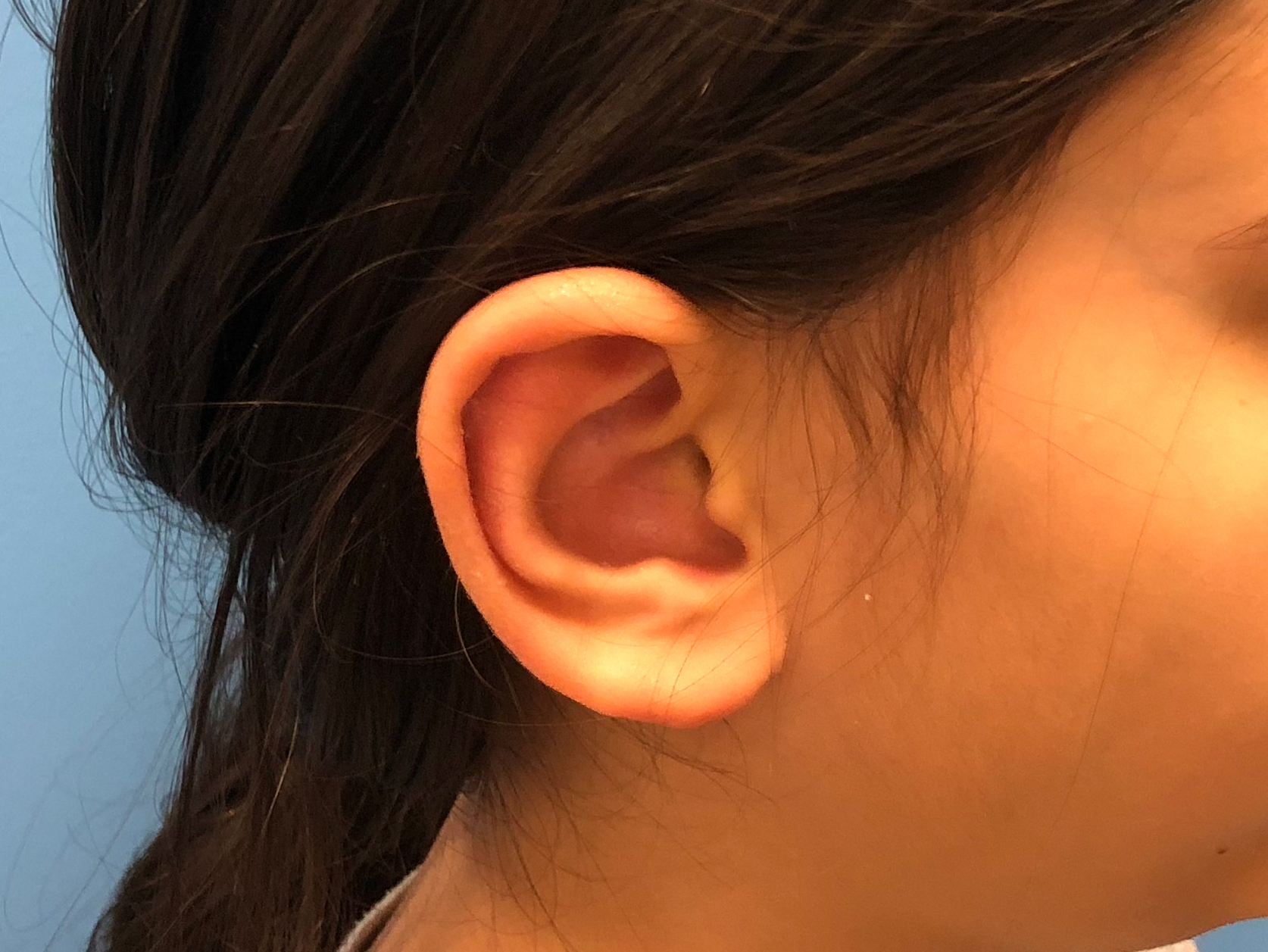 Ear Reduction