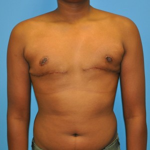 Male breast enlargement may occur soon after puberty as a result of the imbalance of estrogen and testosterone.