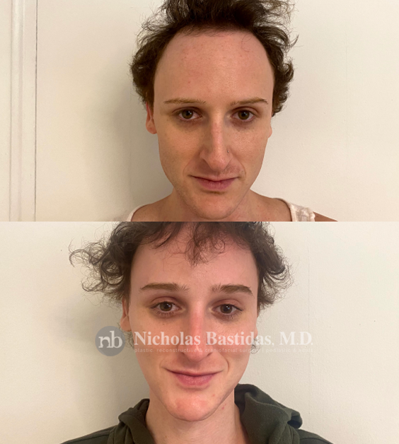 Facial Feminization Procedure Options